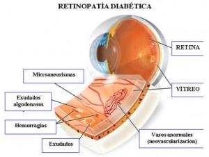 retinopatia diabetica diagnosi e cura