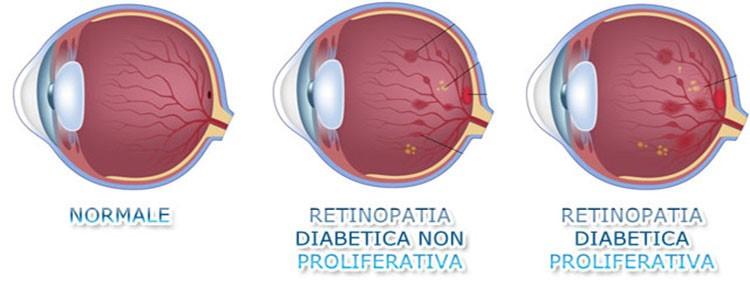 laser giallo cura retinopatia diabetica ed edema maculare diabetico